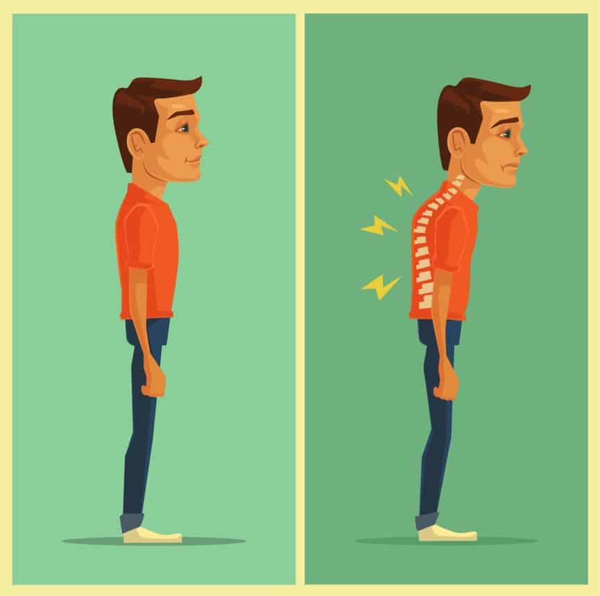 bad posture effects causes back pain