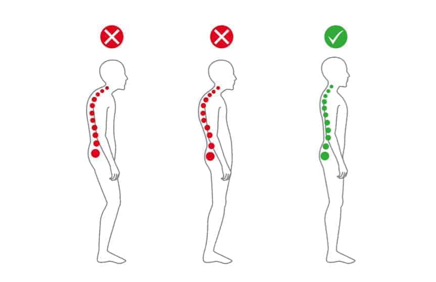 spinal position forward head lean and sway back posture