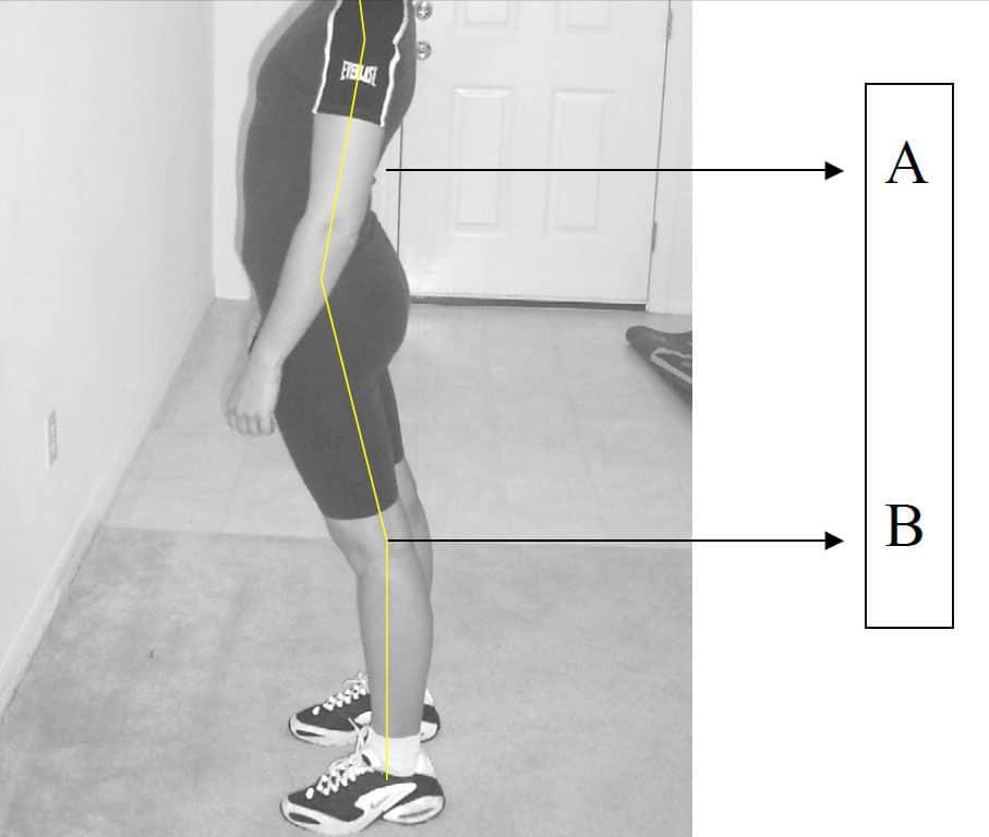 lordosis and tight hip flexors